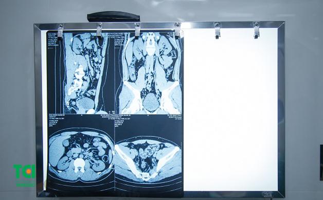 Chỉ định phẫu thuật nội soi tán sỏi niệu quản ngược dòng bằng laser