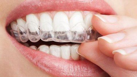 Bạn đã hiểu hết về Niềng răng bằng phương pháp Invisalign