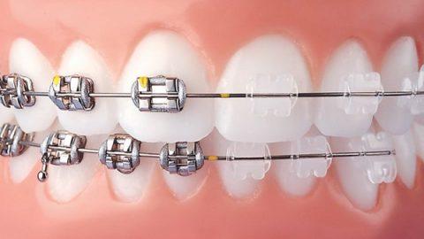 Nẹp răng thẩm mỹ đã thay đổi diện mạo như thế nào?