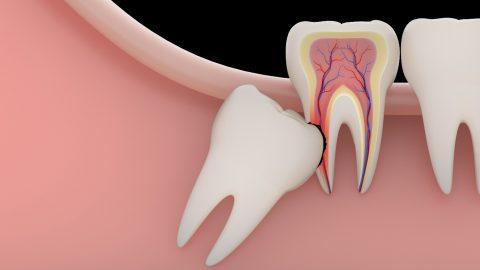 Nhổ răng khôn bao lâu thì lành? Vết thương lâu lành