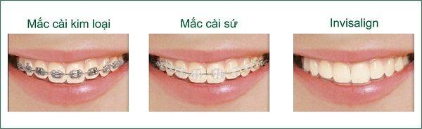 tìm hiểu về nắn chỉnh răng thu cúc