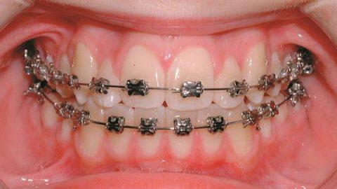 Tìm hiểu về nắn chỉnh răng – Bí quyết sở hữu răng