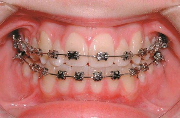 tìm hiểu về nắn chỉnh răng