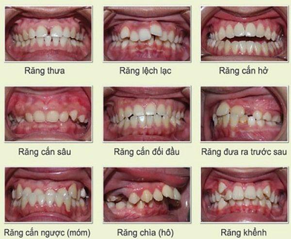 tìm hiểu về niềng răng