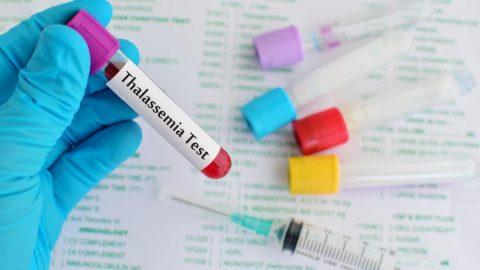 Làm thế nào để phát hiện bệnh thalassemia (tan máu bẩm sinh)?