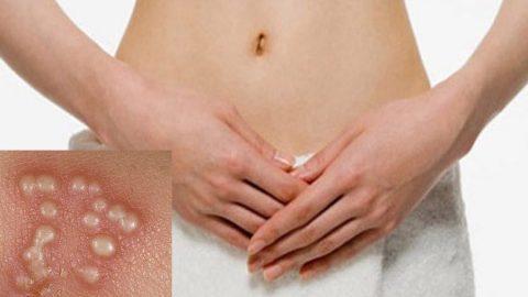 Mụn rộp sinh dục (bệnh Herpes sinh dục) có tự khỏi không?