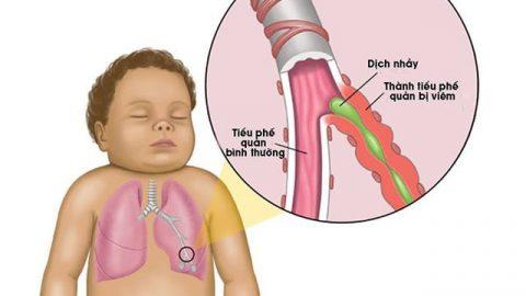 Thông tin cần biết về bệnh viêm tiểu phế quản ở trẻ nhỏ