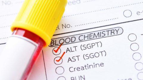 Chỉ số xét nghiệm SGPT là gì? Khi nào nên làm xét nghiệm