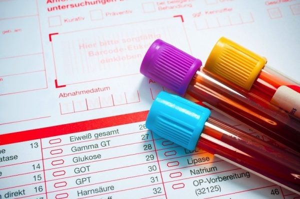 Chỉ số xét nghiệm SGPT (ALT) giúp đánh giá lượng men gan và tình trạng thương tổn ở gan (ảnh minh họa)
