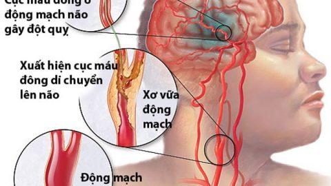 Chỉ số mỡ máu cao coi chừng bệnh tai biến mạch máu não