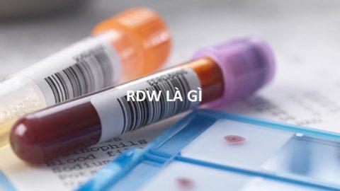 RDW là gì? Khám phá ý nghĩa của chỉ số RDW trong xét nghiệm