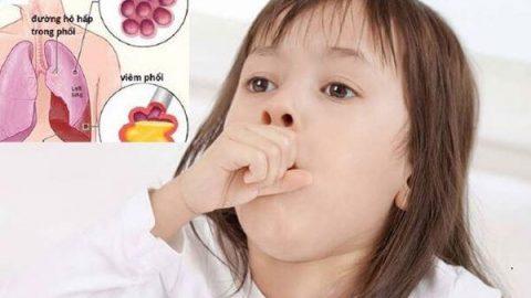 Chi tiết bệnh nhiễm khuẩn hô hấp cấp tính ở trẻ em