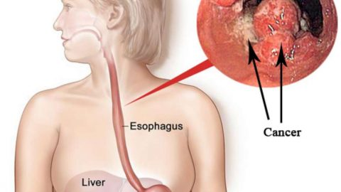 Bệnh trào ngược dạ dày thực quản có nguy hiểm không?