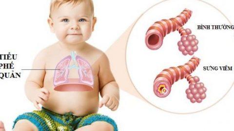 Bệnh viêm phế quản co thắt ở trẻ em và những điều cần biết