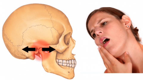 Điều trị viêm khớp thái dương hàm