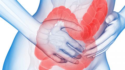 Giải đáp: Hội chứng ruột kích thích nên, không nên ăn gì