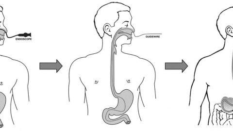 Nội soi dạ dày qua đường mũi có chính xác không?