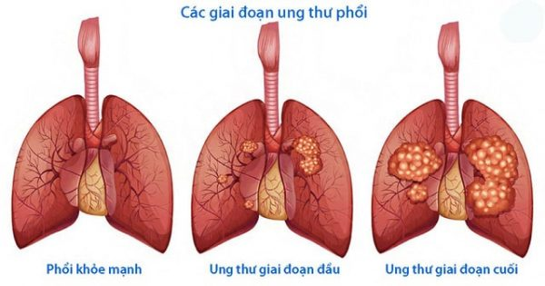 PDW cao cảnh báo ung thư phổi