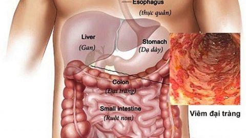 Triệu chứng viêm đại tràng đọc sớm để có biện pháp điều trị hiệu quả