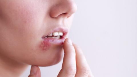 Nhận biết các dấu hiệu bệnh lậu ở miệng
