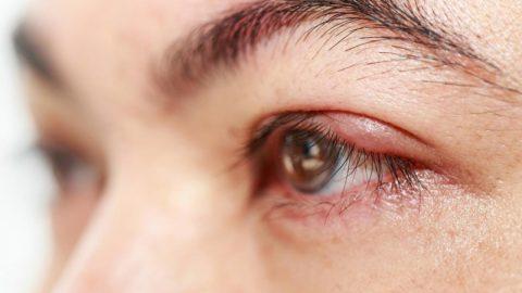 Mí mắt bị ngứa và sưng là do đâu?