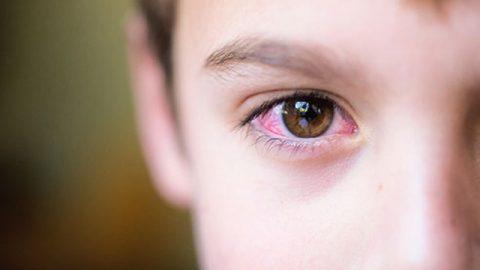 Đâu là con đường lây nhiễm viêm kết mạc mắt?