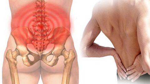 Những điều cần biết khi bị đau lưng dưới