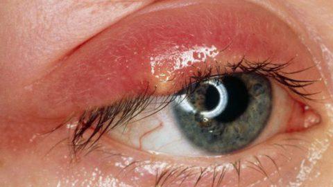 Viêm bờ mi mắt nguyên nhân và cách điều trị