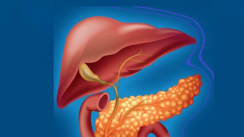 Những nguyên nhân gây bệnh viêm tụy cấp bạn chớ chủ quan
