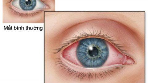 Chớ coi thường bệnh viêm kết mạc mắt