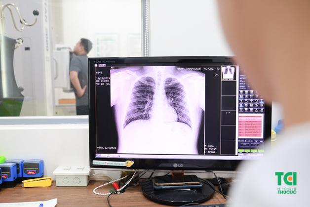Anh Trọng đang thực hiện chụp X-quang ngực thẳng để phát hiện các dấu hiệu bệnh lý bất thường ở khu vực tim phổi
