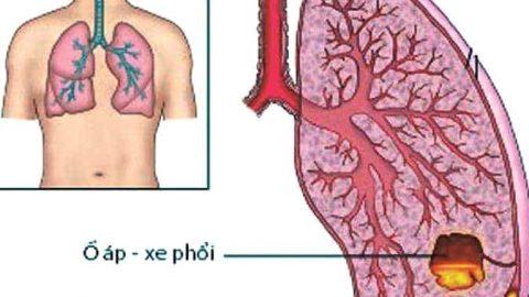 Áp xe phổi ở trẻ em khi nào cần phẫu thuật?