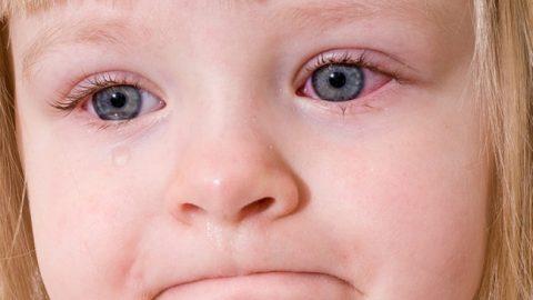 Giúp mẹ nhận biết dấu hiệu bệnh viêm kết mạc mắt ở trẻ nhỏ