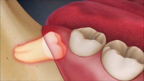 Dấu hiệu mọc răng khôn làm sao để khắc phục tình trạng này