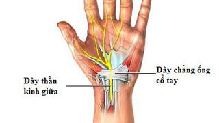 Hội chứng ống cổ tay khiến dây thần kinh chạy thẳng từ cẳng tay đến lòng bàn tay bị sưng và đau nhức.