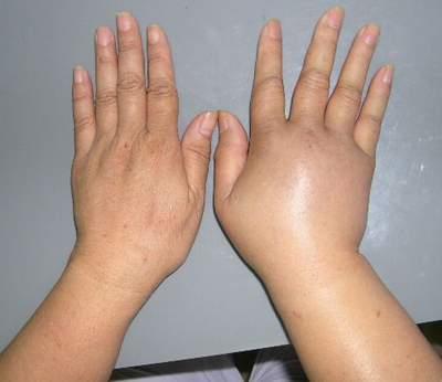 Phù mạch bạch huyết cũng là nguyên nhân gây bệnh