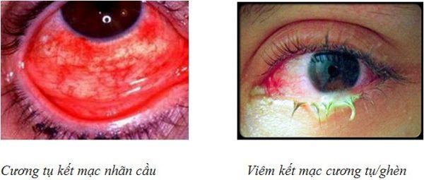 bệnh viêm kết mạc gây gỉ mắt bất thường