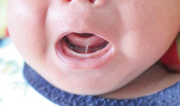 Phẫu thuật cắt dính thắng lưỡi ở trẻ