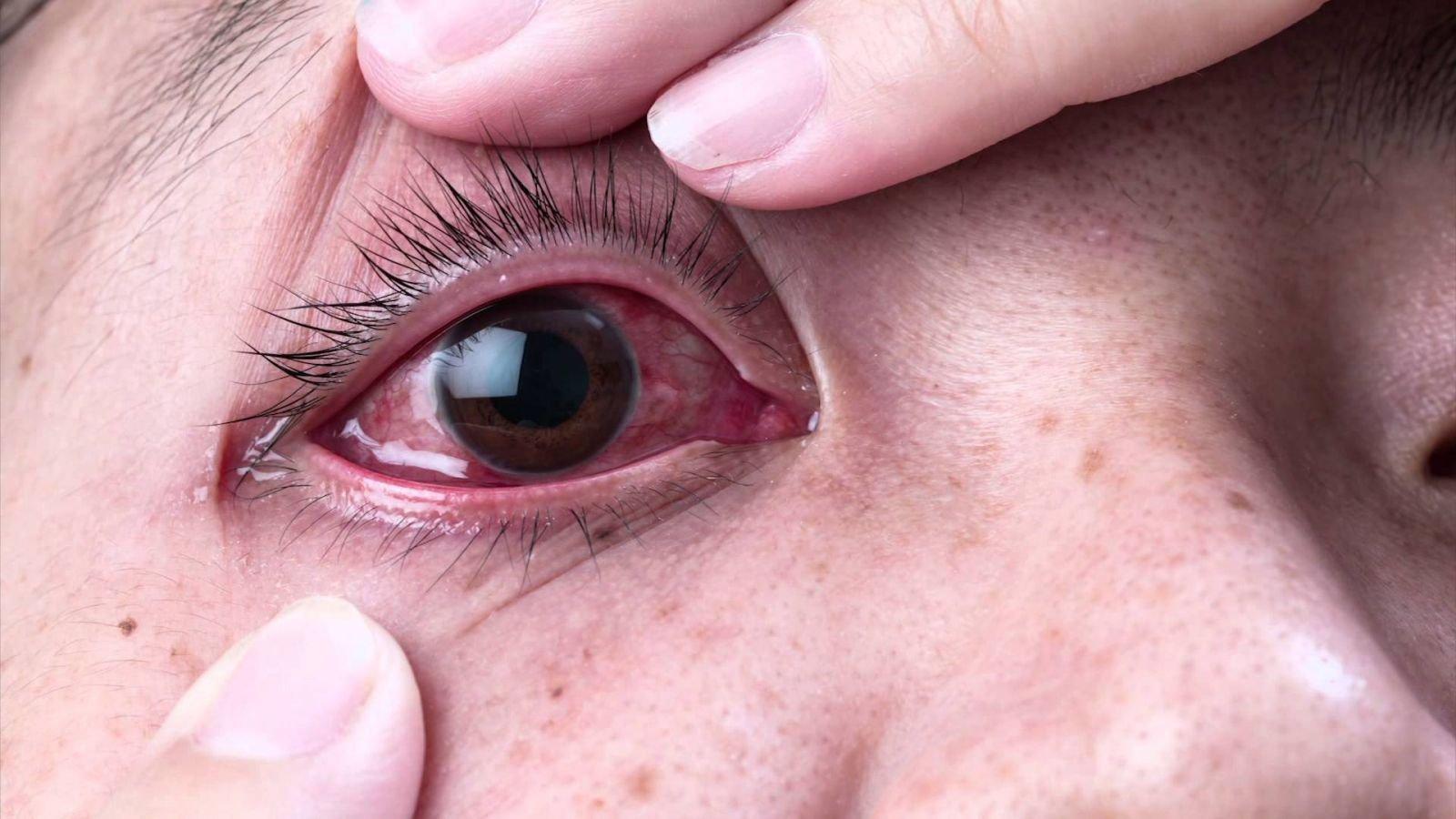 Bệnh đau mắt đỏ ở trẻ em nguyên nhân và cách điều trị