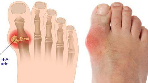 Đối tượng nào dễ mắc bệnh gout? Lời khuyên bệnh gout