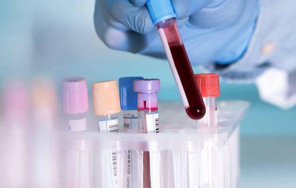 xét nghiệm máu ở trẻ em nói lên điều gì