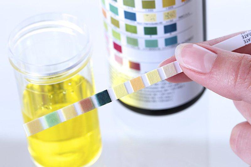 Xét nghiệm nước tiểu ở trẻ em thường được chỉ định khi có nghi ngờ các bệnh lý về thận, viêm đường tiết niệu,..