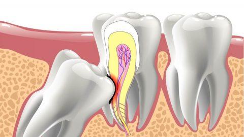 Răng khôn là gì, có nên nhổ răng khôn không?