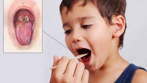 [Cảnh báo] Bệnh bạch hầu ở trẻ em dễ nhầm lẫn với bệnh viêm mũi họng