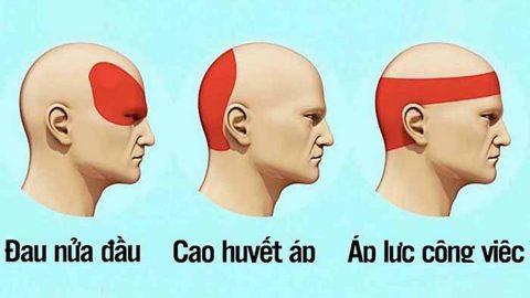 Bệnh đau đầu có thực sự nguy hiểm như mọi người thường nói