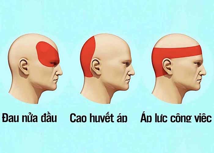 3 dạng bệnh đau đầu phổ biến là đau nửa đầu, đau đầu do cao huyết áp, đau đầu do áp lực, stress