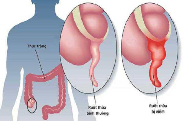 Viêm ruột thừa là một cấp cứu ngoại khoa thường gặp