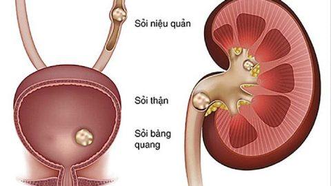 Các loại sỏi tiết niệu thường gặp và phương pháp điều trị