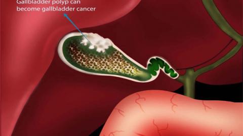 Polyp túi mật và nguy cơ ung thư hóa
