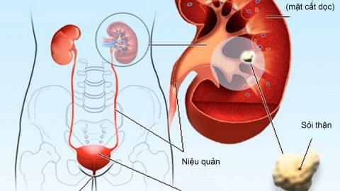 Sỏi hệ tiết niệu là gì? Nguyên nhân, triệu chứng và cách điều trị